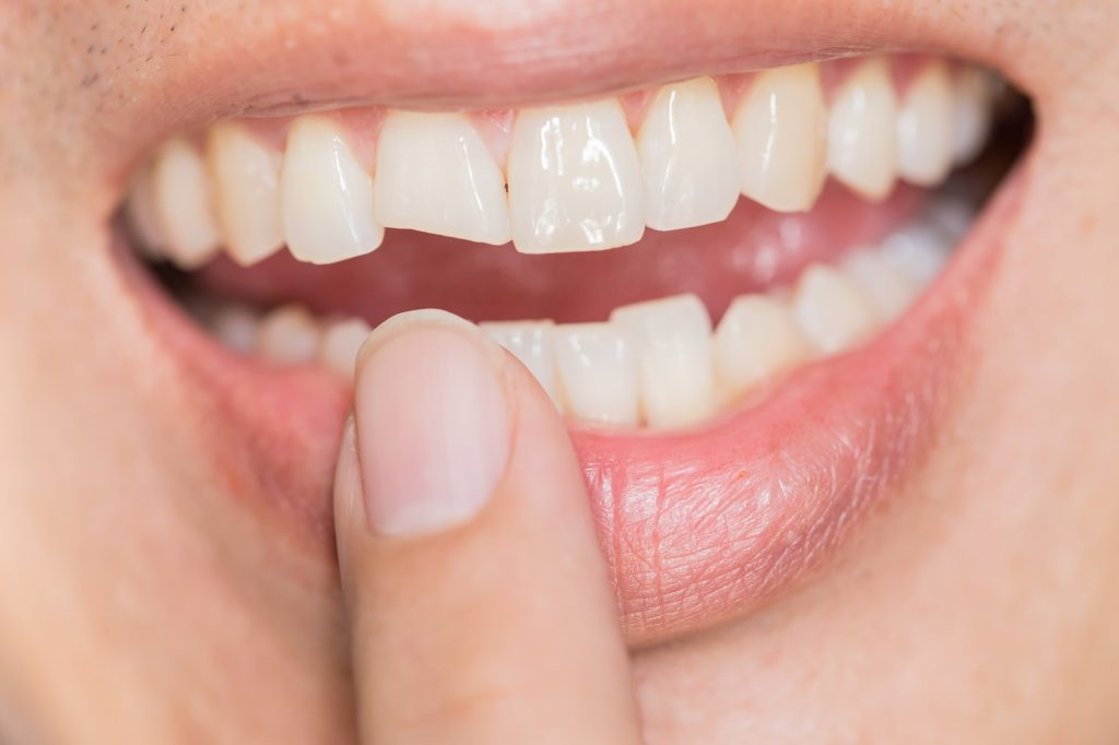 Man pointing to his chipped front tooth