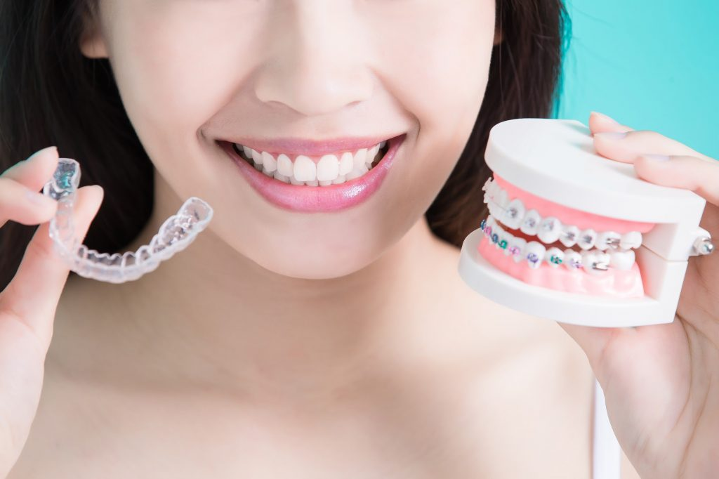 Smiling woman holds up clear aligns and a mouth model with metal braces