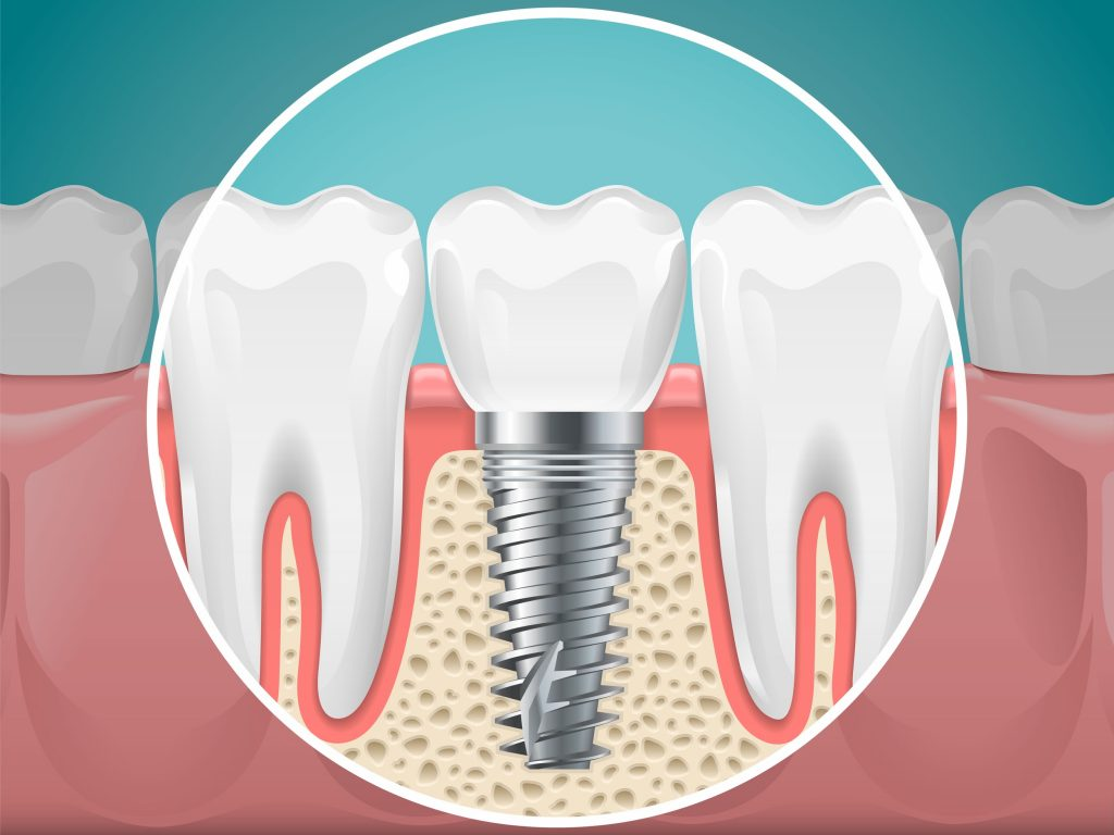 A close up illustration of a dental implant above and below the gumline